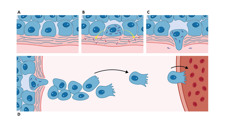 process of cell transformation, migration and invastion leading to metastasis
