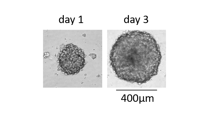 3d Tumor spheroids grown for 3 days derived of U87 cell culture