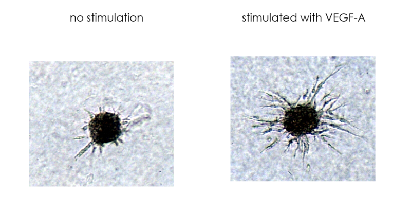 example for vessel sprouting of human endothelial cells in the cell based angiogenesis assay